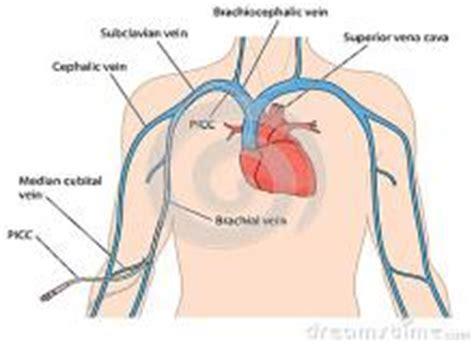 pression positive chambre implantable cathéter veineux central picc line à ève aux hug hug