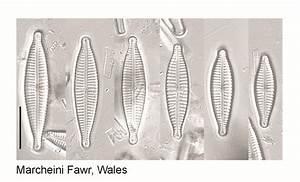 Gomphonema Parvulum