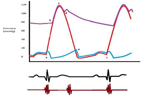 cardiac cycle sounds  murmurs