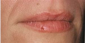 what do genital herpes look like - pictures, photos