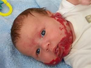 How Bad Can A Birthmark Be