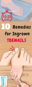 An Ingrown Toenail Happens When The Corner Or Edge Of Your