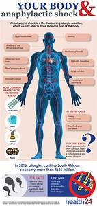 See  How Anaphylactic Shock Affects Your Body
