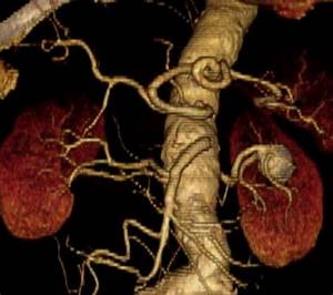 Cta Angiography Cat Scan Quick Reference Guide For Physicians
