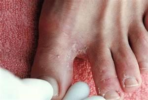 Что быстрее вылечит грибок ногтей на ногах