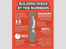 Best 25+ Bulging discs ideas on Pinterest Back disc