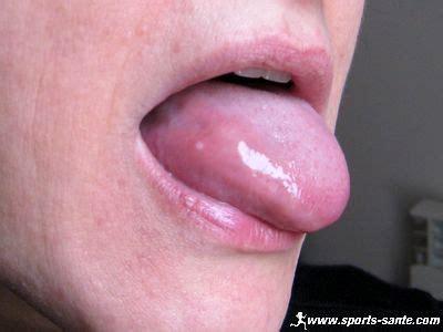 herpes buccal interieur bouche traitement contre les aphtes dans la bouche aphte buccal cause et origine