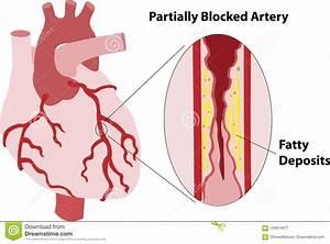 Partially Blocked Coronary Artery Stock Image