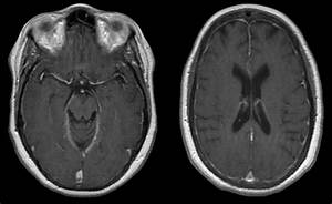 Ct Scan Brain Ct And Mr Imaging Of Progressive Dural Involvement By