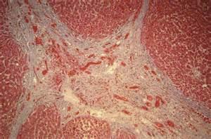 Bridging Fibrosis Liver