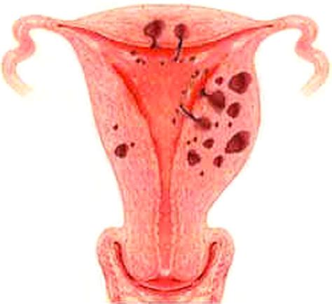 Organ Kandungan Wanita Kanker Rahim Konsultan Kolesterol