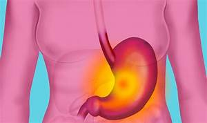Stomach cancer symptoms: Taking long-term acid reflux ...  Stomach