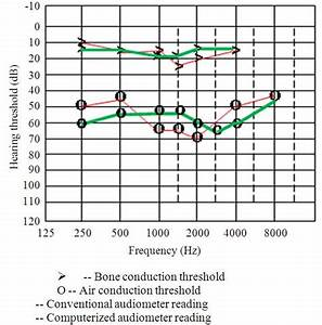 Audiograms Of A Patient With Conductive Hearing Loss