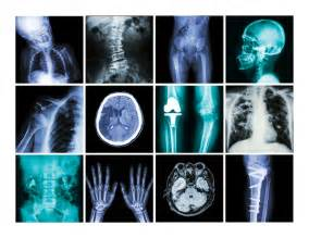 what does a cat scan show when to question x rays and ct scans consumer reports