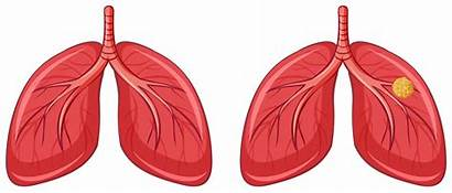 Cancer Lungs Human Vector Graphics Related Clipart