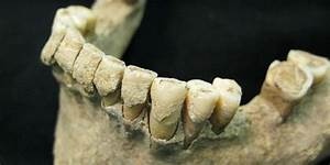 Ancient Dental Plaque From 1,000-Year-Old Human Skeletons ...