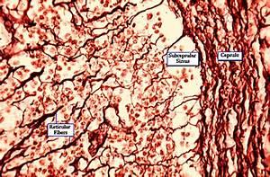 Reticular Tissue Lymph Node