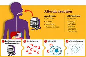 About Anaphylaxis In Schools