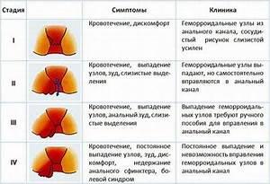Геморрой лечение в сочи