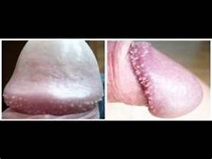 1000+ images about Pearly Penile Papules Foreskin on ...