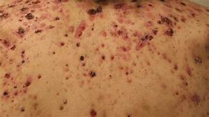 The Truth About How Steroids Can Affect Your Acne
