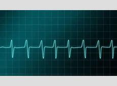 Electrocardiograma, representación gráfica de la actividad