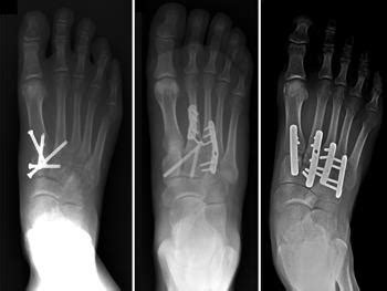 In patients with suspicious mechanism, have. Lisfranc (Midfoot) Injury - OrthoInfo - AAOS