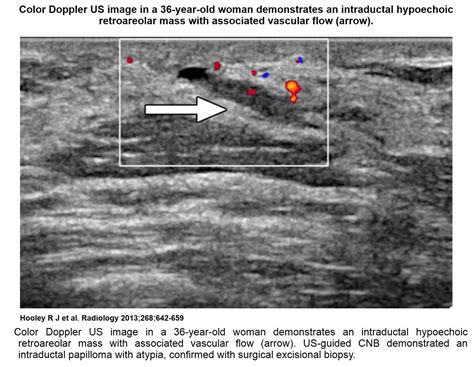 Recent Comprehensive Review On The Role Of Ultrasound In
