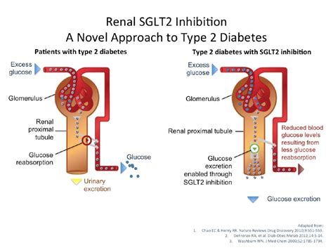 sglt  inhibitors diabetes daily