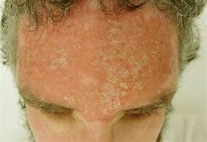 Sunburn Blisters - Treatment, Pictures, Causes, Relief