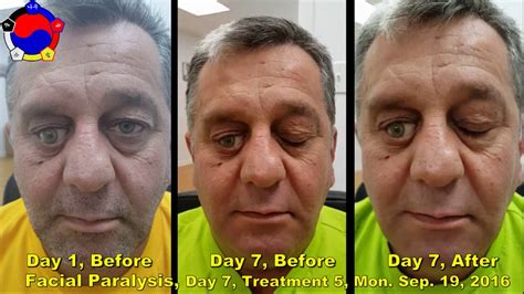 Facial Paralysis (Bell's Palsy) Testimonial - Day 7 ...