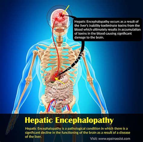 hepatic encephalopathycausessymptomstreatmentprognosis