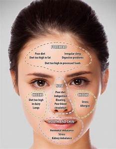 Acne Face Map Causes And Solutions
