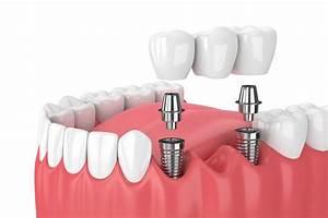 Multiple Teeth    Fixed Bridge