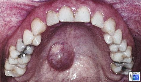 nicht odontogene zysten und fisteln