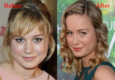 Brie Larson Plastic Surgery Before And After  Celebrity. Las Vegas Home Insurance Locksmith Norwood Ma. 554 Sending Address Not Accepted Due To Spam Filter. Commercial Real Estate Investment Analysis. Best Business Card Companies. Cheapest Catalog Printing House Car Insurance. Owners Contractors Protective. Pest Control Mckinney Tx Degree In Sonography. Rochester Bath Remodeling Closing Cost Loans