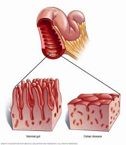 Celiac Disease - Symptoms And Causes