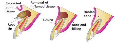 apicoectomy yokine maddington apicoectomy treatment perth