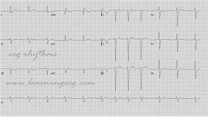Ecg Block Heart Complete Rhythms Case