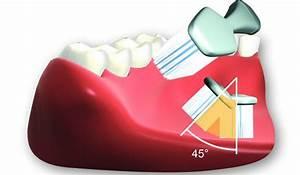 45 Grad Winkel Auf Gehrung : z hneputzen aber richtig zahnarztpraxis dr ahlvers ~ Lizthompson.info Haus und Dekorationen