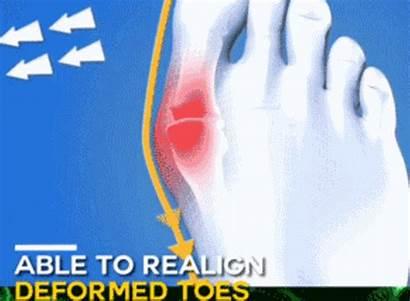 Sandals Comfy Toe Bunion Orthopedic Correction Sandal