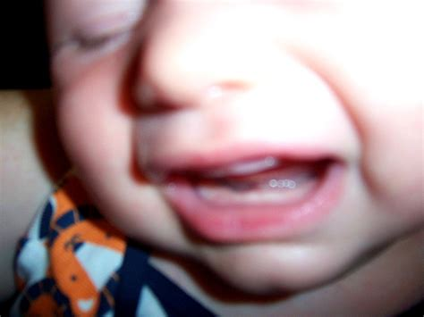 Monster Proof Friday 5 Teething Symptoms