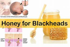 home remedies for blackheads on face