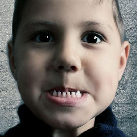 Mencegah Hamil Nanas Kebiasaan Anak Ini Bisa Merusak Gigi