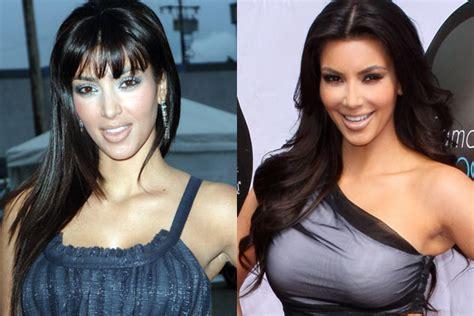 kim kardashian plastic surgery    botox