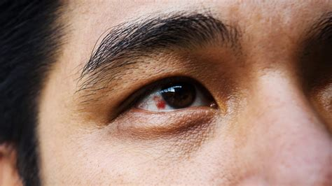 Why Eyes Are Red And How To Get Rid Of Bloodshot Eyes