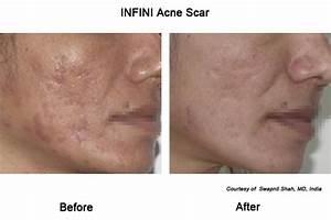 infini acne scars