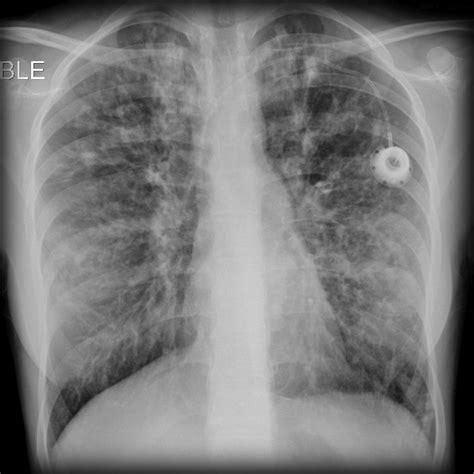 Cystic Fibrosis Xray Wwwpixsharkcom Images Galleries