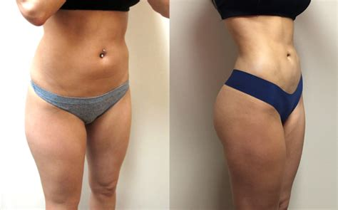 Liposuction Before And After Results  Health 20 Blog. Home Security Systems Dayton Ohio. Tenants Contents Insurance Cleaning Maid Easy. Beauty Schools In Concord Ca. Cable One High Speed Internet. South Boston Boxing Club Apple Auto Insurance. American Heart Association Acls Certification. Us News Best Business Schools. University Of Alabama Birmingham