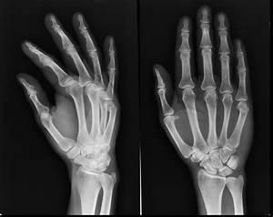 Image Gallery metacarpal fracture